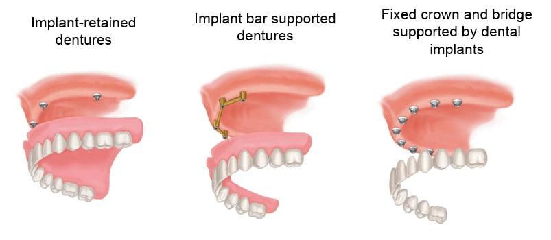 Implants: Denture Stabilisation Guildford | Fairlands Dental ...
